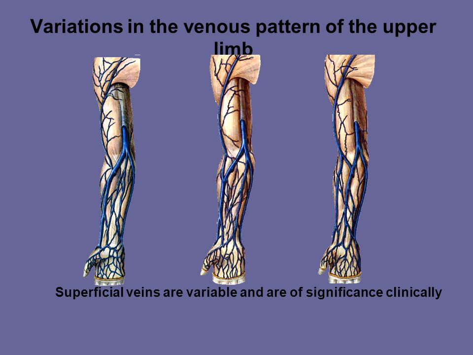Variations in the venous pattern of the upper limb