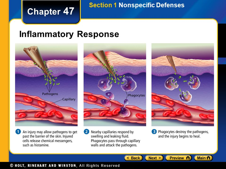 the inflammatory response Chronic inflammation is maintained by more complex interactions among several cell types diagram from webpath the basic components of the inflammatory response are: vasodilation increased vascular permeability emigration of white blood cells see illustration from webpath.