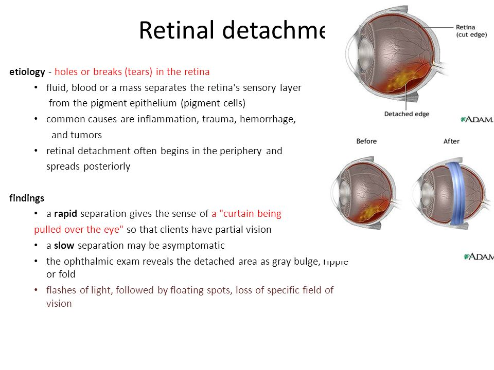 Retinal Detachment Vision