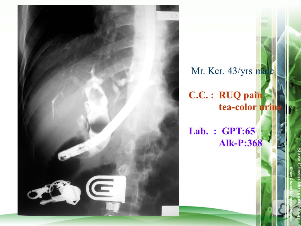 Mr. Ker. 43/yrs male C.C. : RUQ pain tea-color urine Lab. : GPT:65 Alk-P:368
