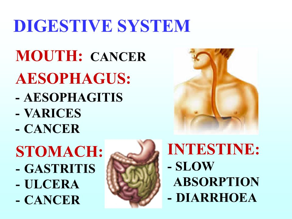 DIGESTIVE SYSTEM MOUTH: CANCER