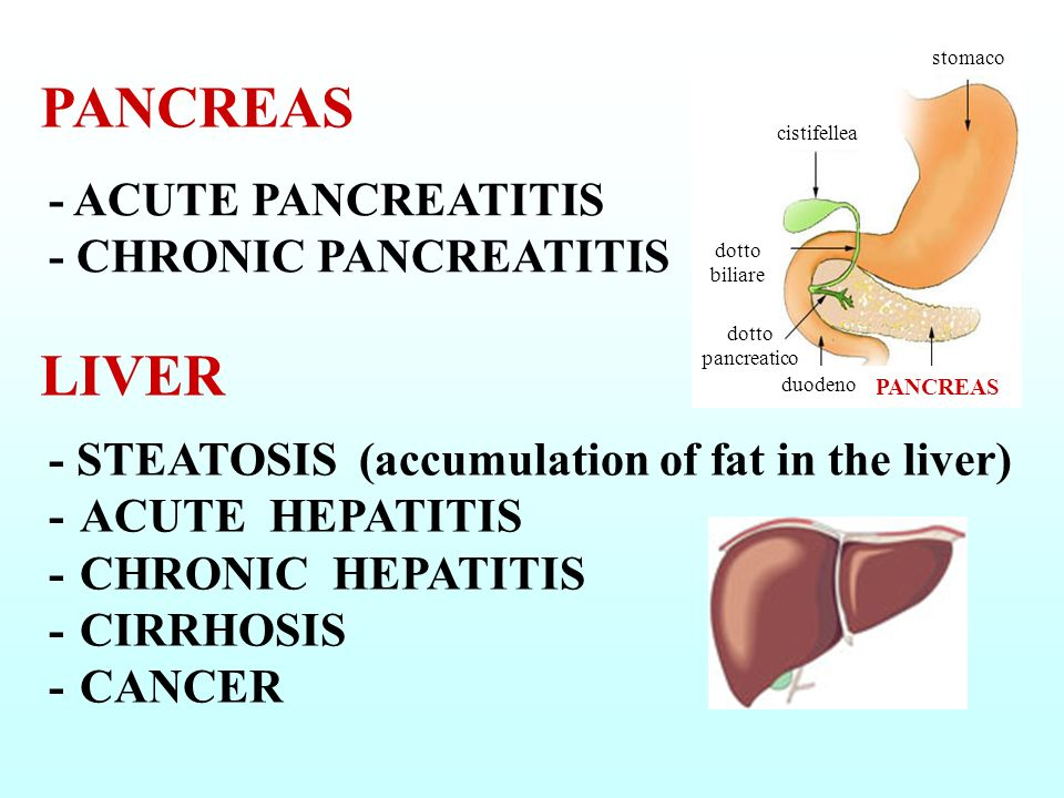 PANCREAS LIVER - ACUTE PANCREATITIS - CHRONIC PANCREATITIS
