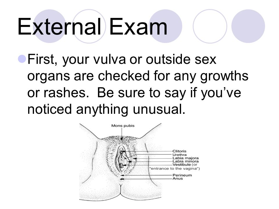 External Exam First, your vulva or outside sex organs are checked for any growths or rashes.