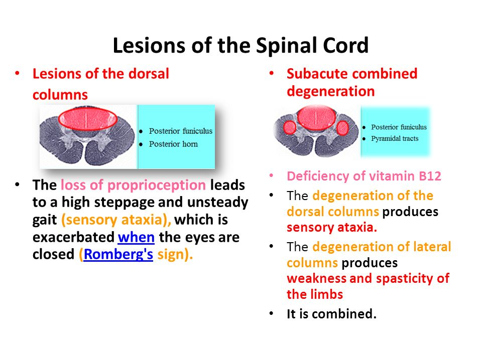 Descending Tracts Dr Rania Gabr. - ppt video online download B12 Deficiency Spinal Cord