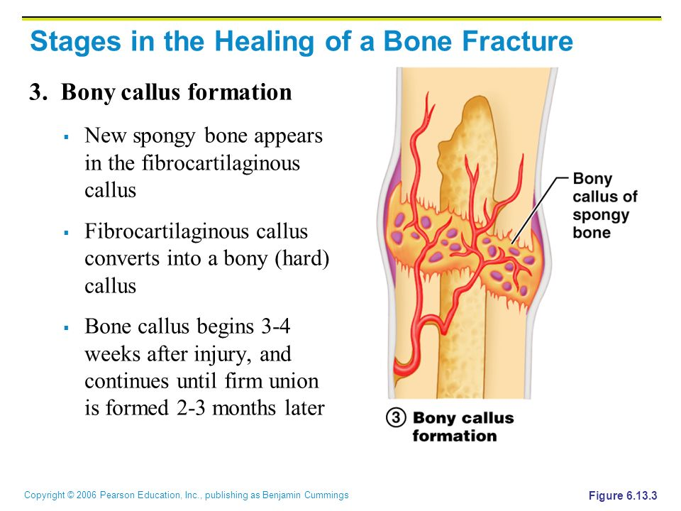 callus formation bone – citybeauty, Muscles