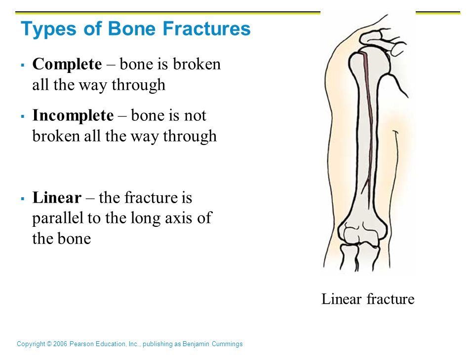 types of bone fractures pdf