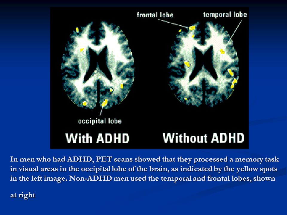 In men who had ADHD, PET scans showed that they processed a memory task in visual areas in the occipital lobe of the brain, as indicated by the yellow spots in the left image.