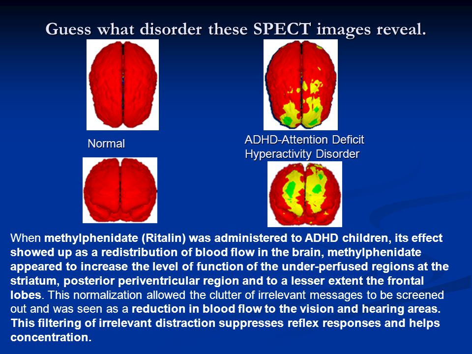 Guess what disorder these SPECT images reveal.