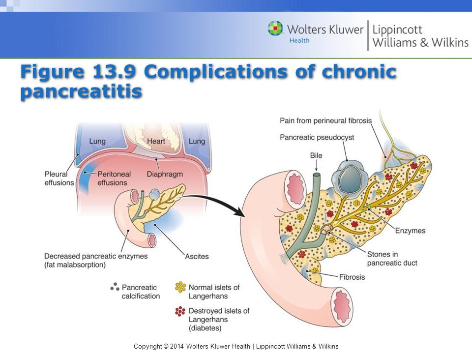 Chapter 13 Disorders of the Pancreas - ppt video online download