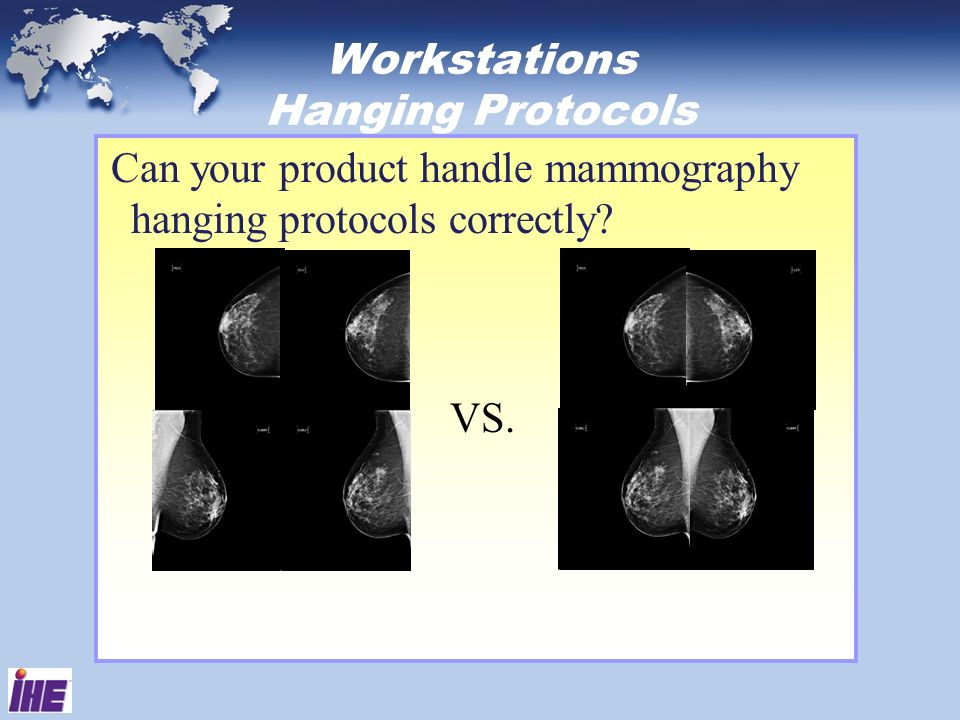 Workstations Hanging Protocols