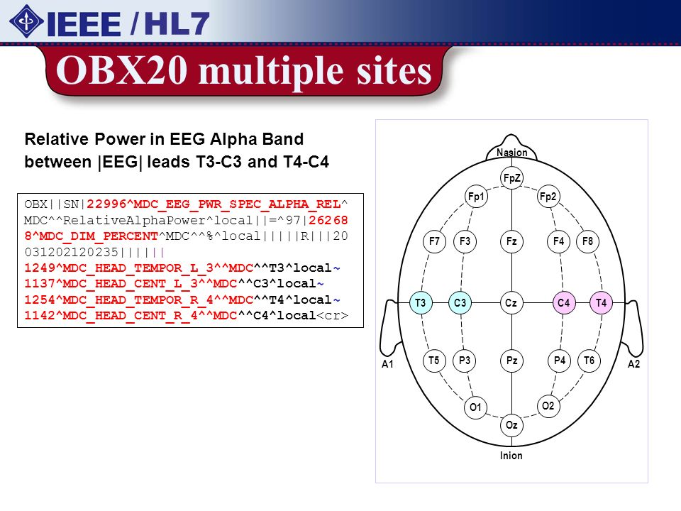 OBX20 multiple sites / HL7 Relative Power in EEG Alpha Band