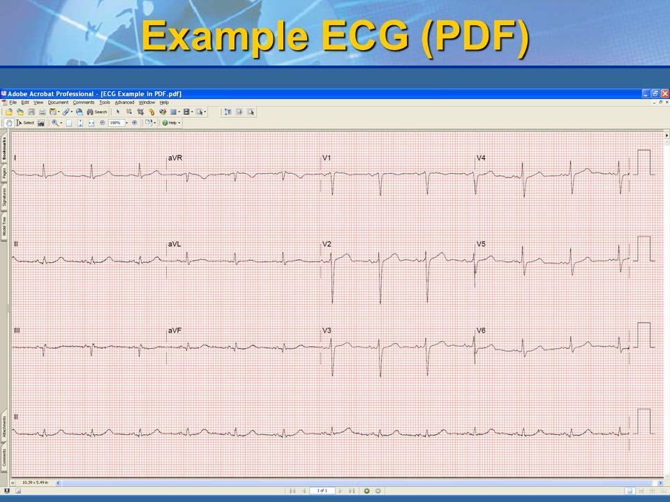 Example ECG (PDF)