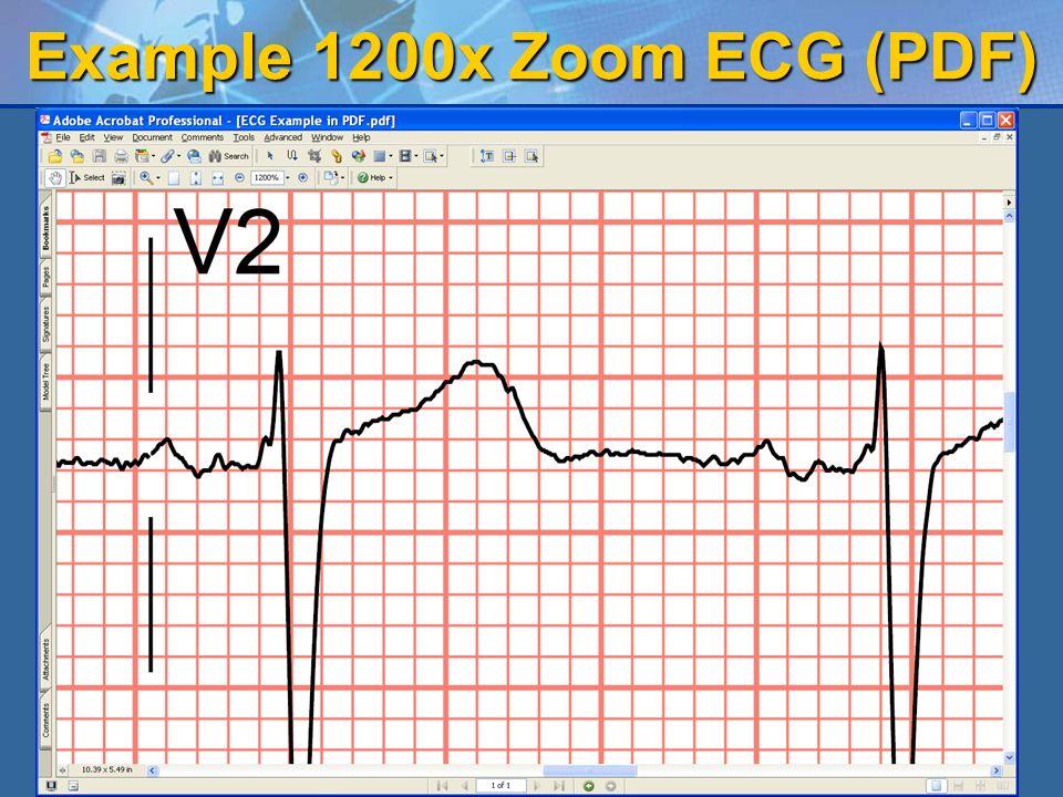 Example 1200x Zoom ECG (PDF)