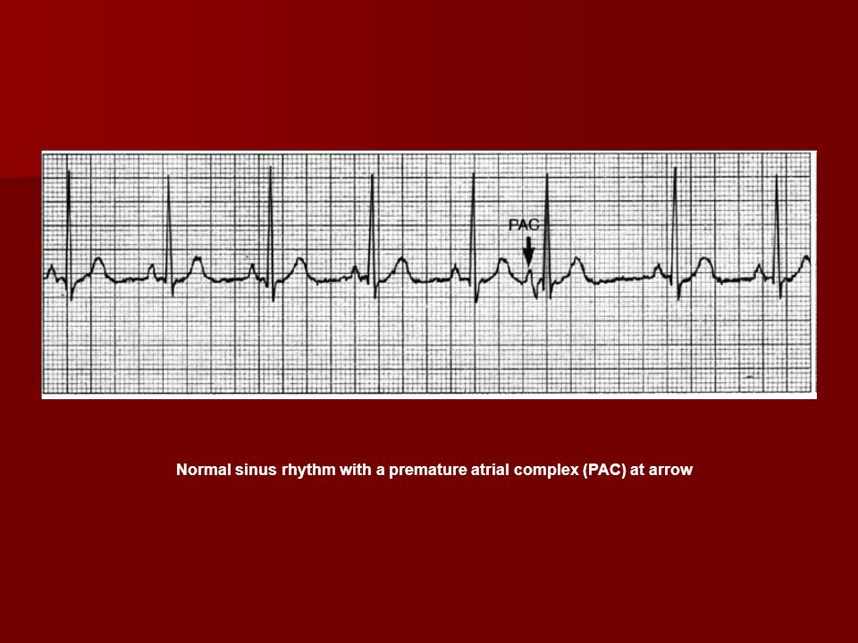 Forum on this topic: How to Reduce Heart Palpitations, how-to-reduce-heart-palpitations/