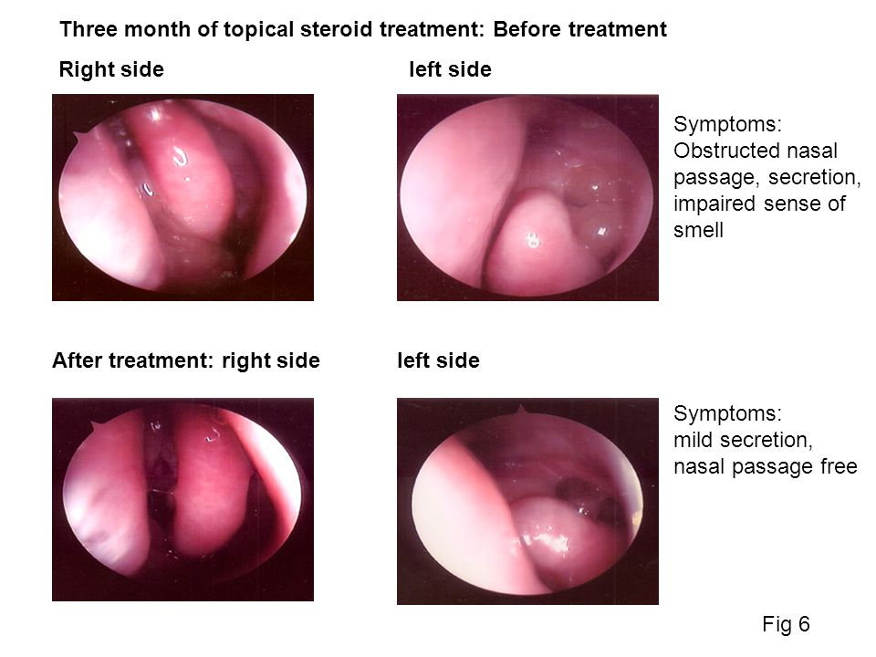 Three month of topical steroid treatment: Before treatment