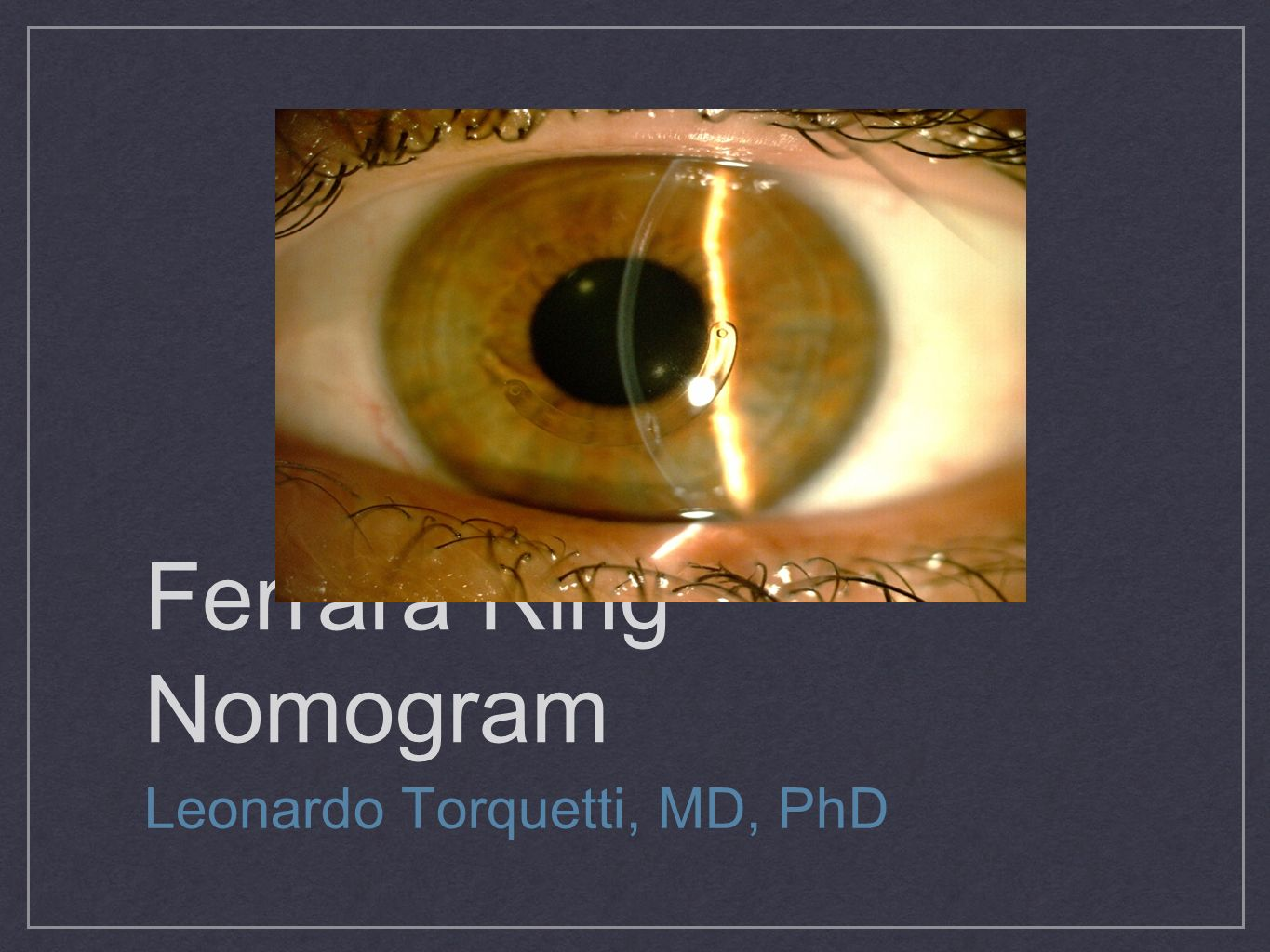 Ferrara Ring Nomogram Leonardo Torquetti, MD, PhD