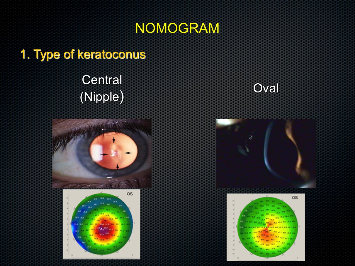 NOMOGRAM 1. Type of keratoconus Central (Nipple) Oval