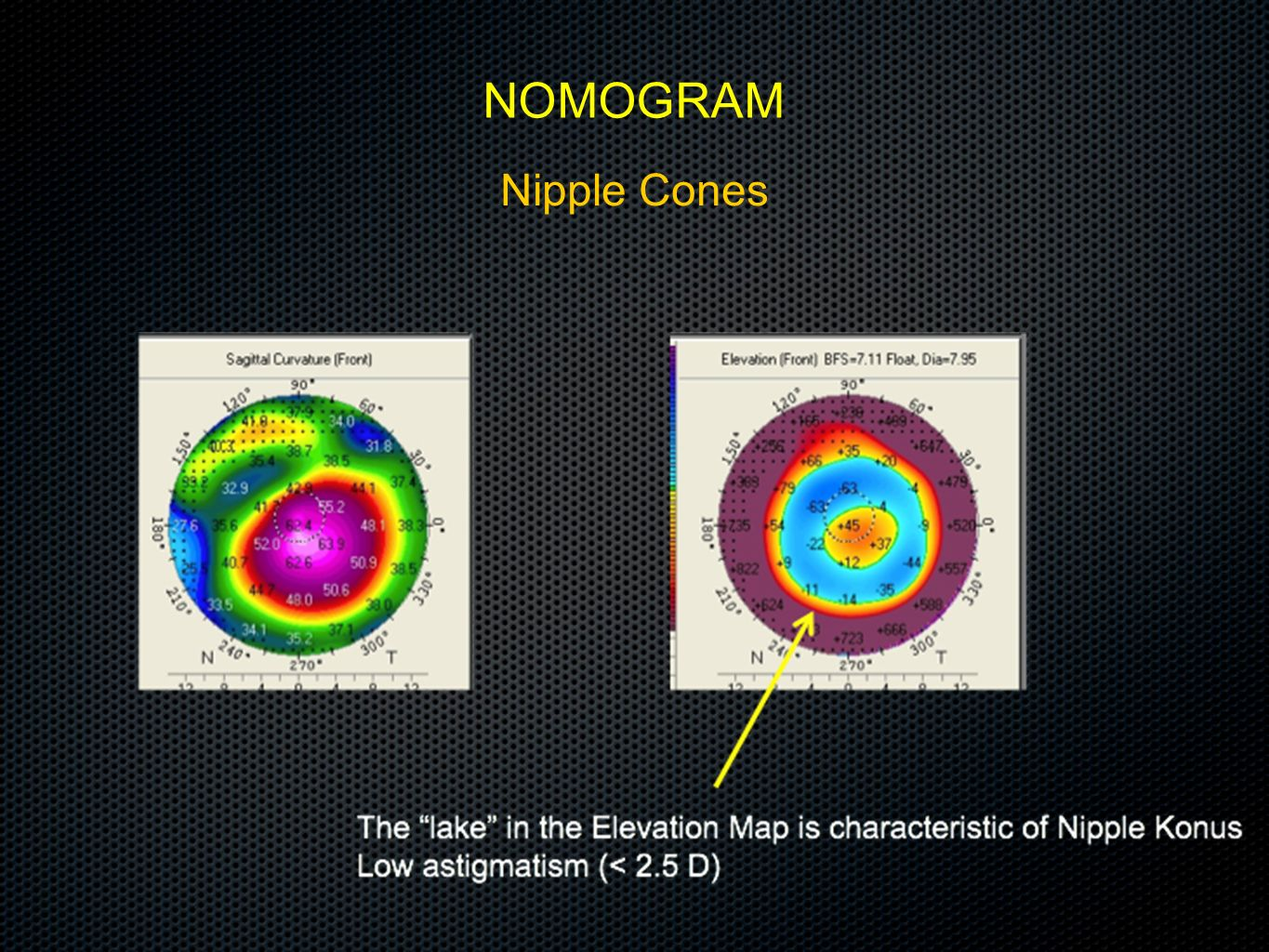 NOMOGRAM Nipple Cones