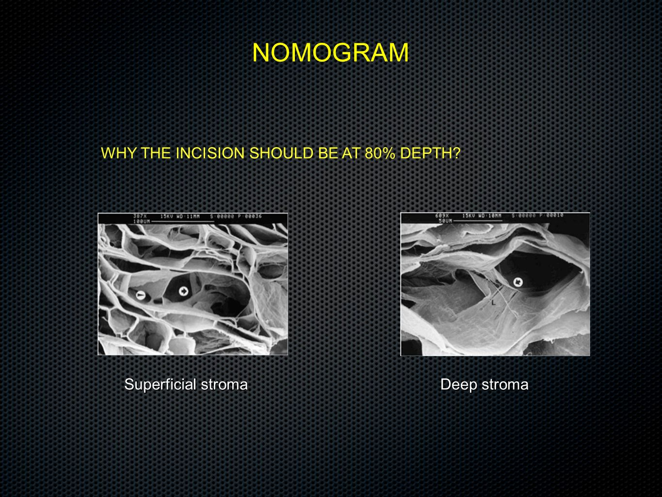 NOMOGRAM WHY THE INCISION SHOULD BE AT 80% DEPTH Superficial stroma