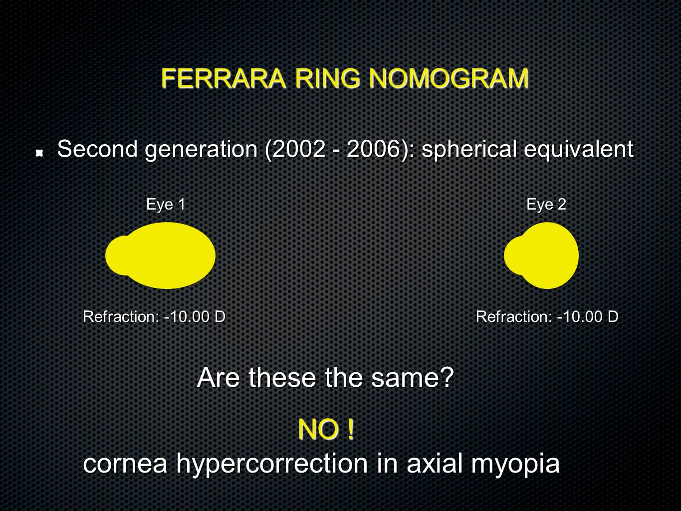 cornea hypercorrection in axial myopia