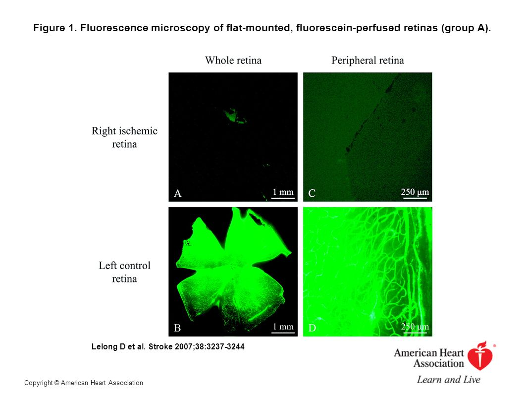Figure 1. Fluorescence microscopy of flat-mounted, fluorescein-perfused retinas (group A).
