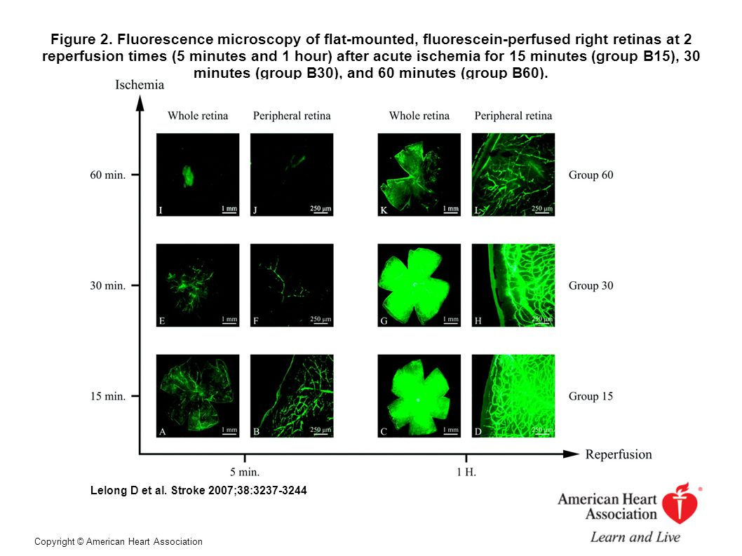 Figure 2. Fluorescence microscopy of flat-mounted, fluorescein-perfused right retinas at 2 reperfusion times (5 minutes and 1 hour) after acute ischemia for 15 minutes (group B15), 30 minutes (group B30), and 60 minutes (group B60).