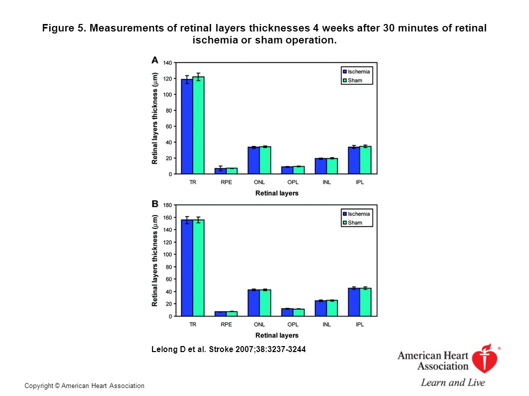 Figure 5. Measurements of retinal layers thicknesses 4 weeks after 30 minutes of retinal ischemia or sham operation.