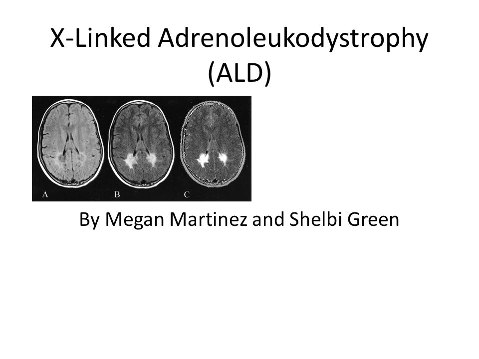 an analysis of adrenoleukodystrophy ald Clinical test for adrenoleukodystrophy offered by bioscientia gmbh adrenoleukodystrophy (ald) c sequence analysis of the entire coding region.