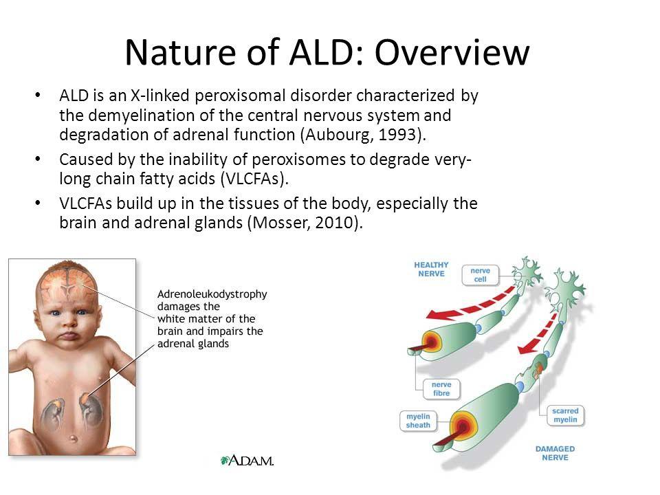 x-linked adrenoleukodystrophy (ald) - ppt download, Skeleton