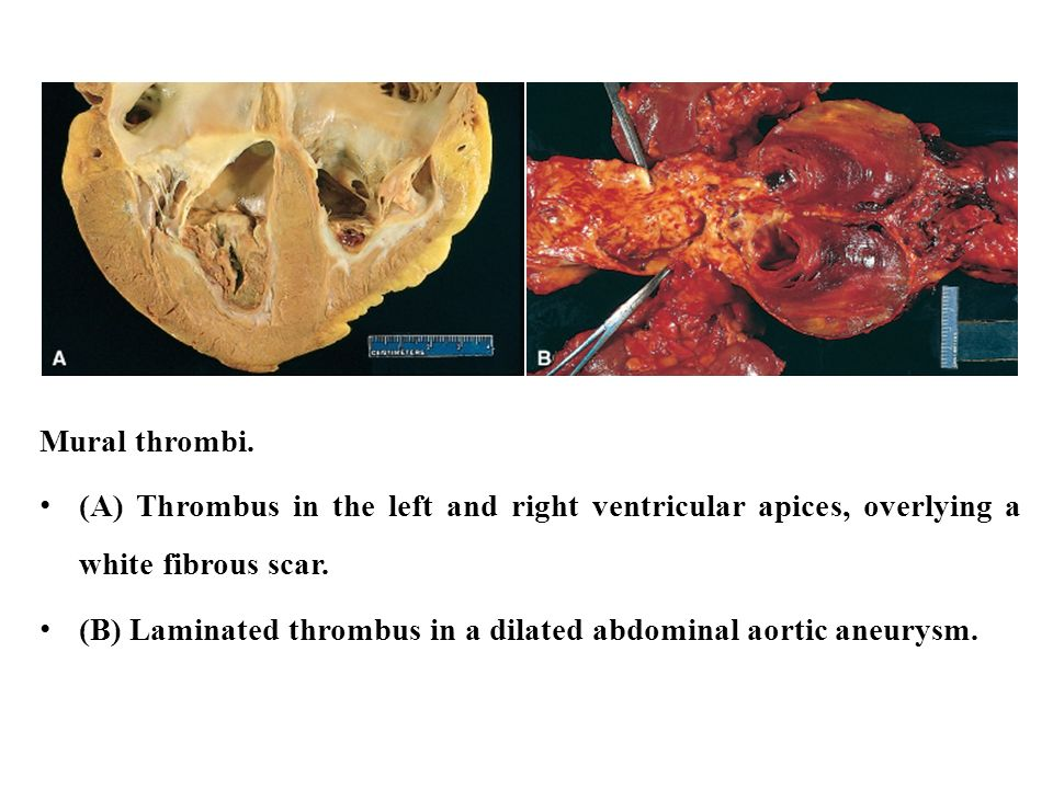 Aging normal and abnormal ppt video online download for Mural thrombus aorta