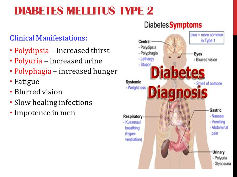 Encompassing diabete mellitus type two