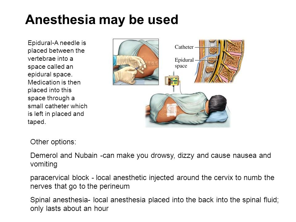 Anesthesia may be used Other options: