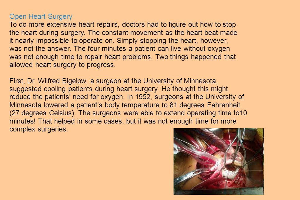 Open Heart Surgery To do more extensive heart repairs, doctors had to figure out how to stop.
