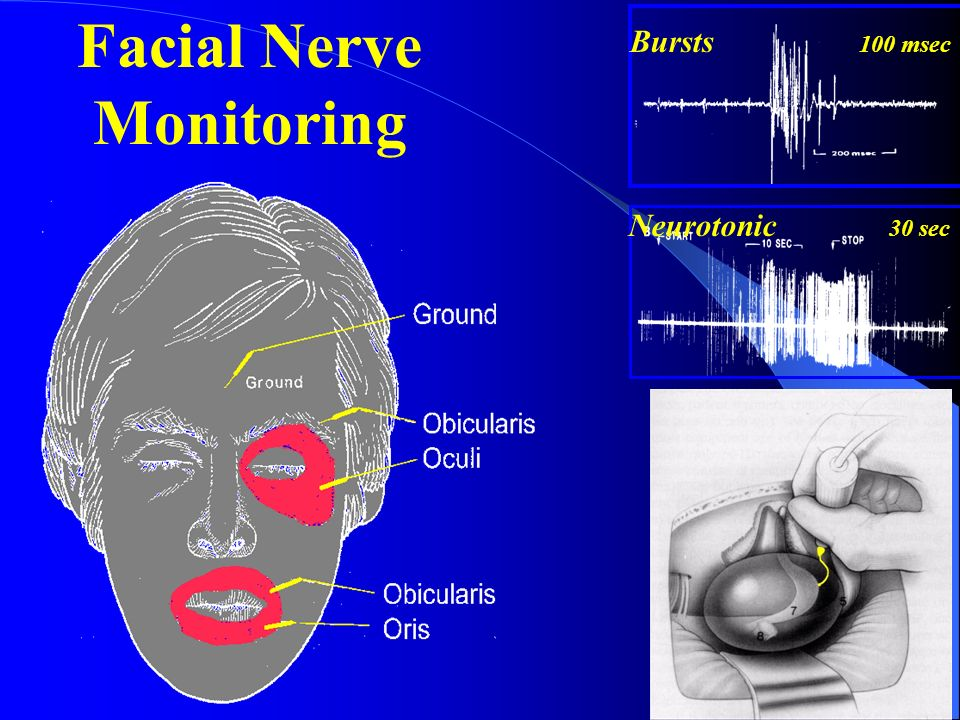 Intraoperative neurophysiology and neuromonitoring ppt for Motor evoked potential monitoring