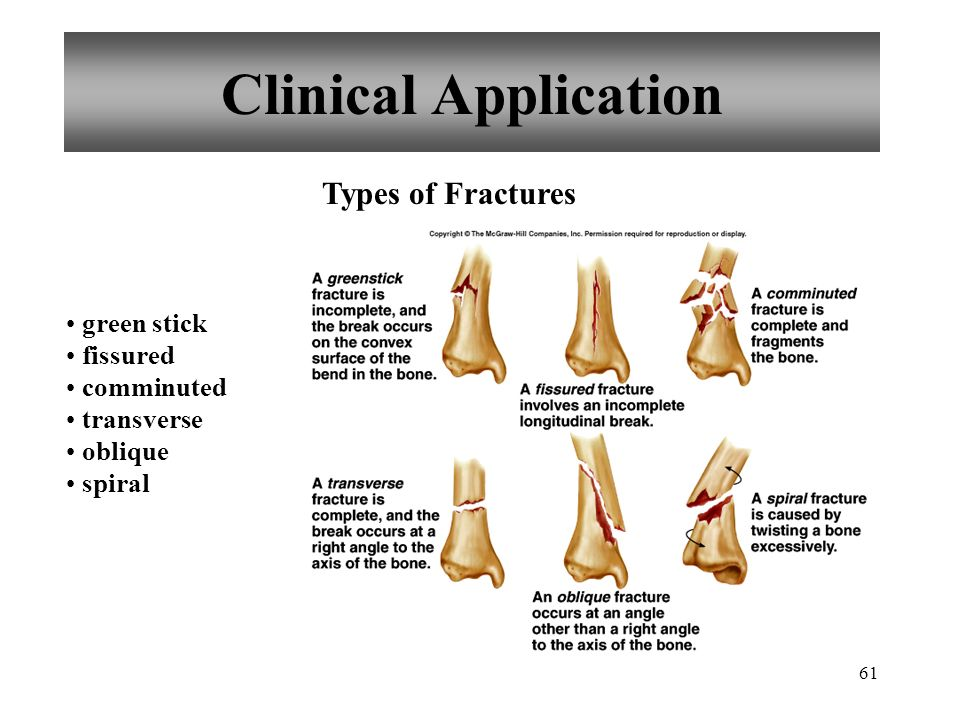 Clinical Application Types of Fractures green stick fissured