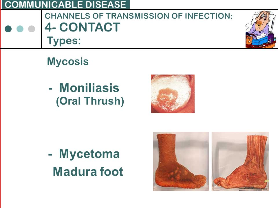 4- CONTACT - Moniliasis - Mycetoma Madura foot Types: Mycosis