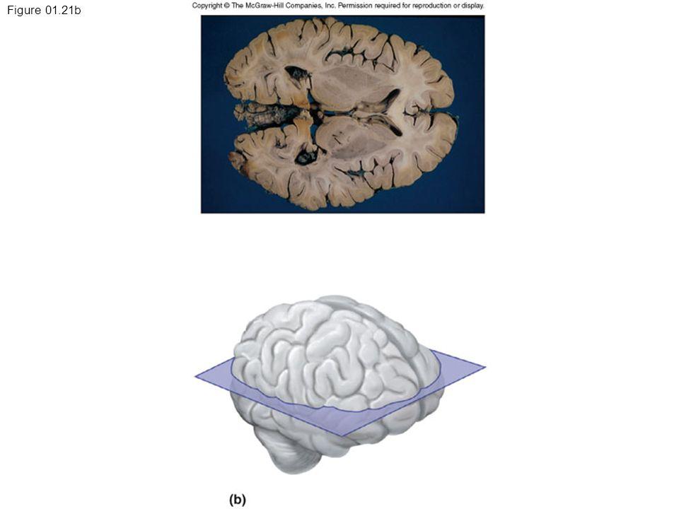 Figure 01.21b