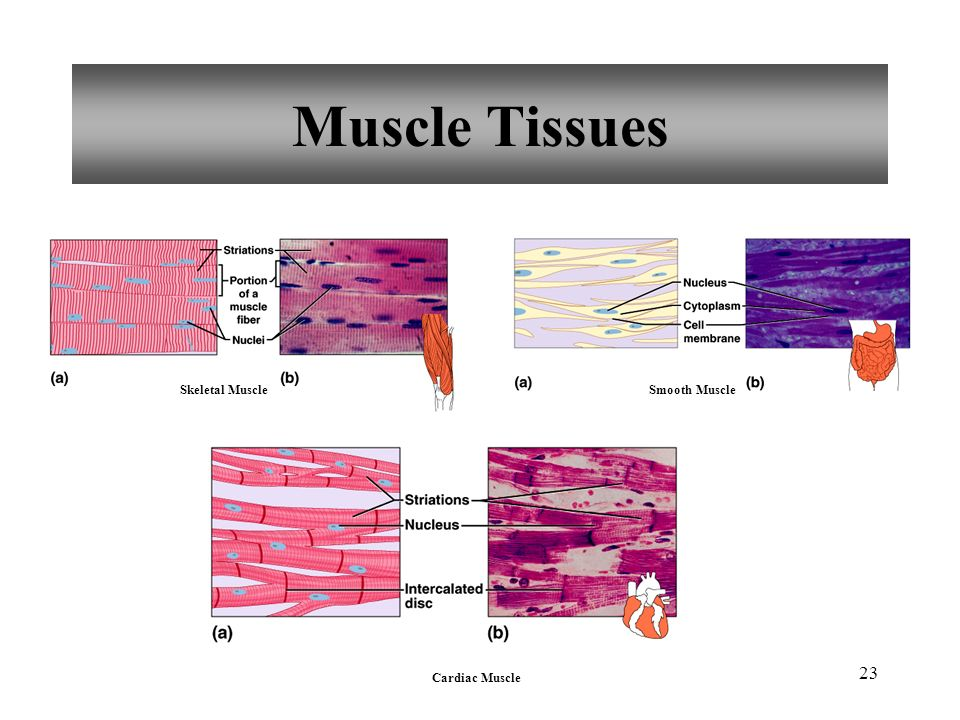 Muscle Tissues Skeletal Muscle Smooth Muscle Cardiac Muscle