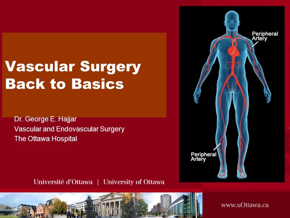 Vascular Surgery Back to Basics - ppt video online download
