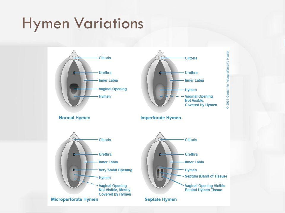 Hymen Variations
