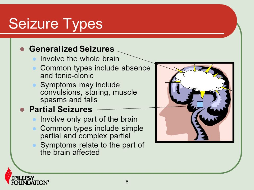 Seizure Types Generalized Seizures Partial Seizures