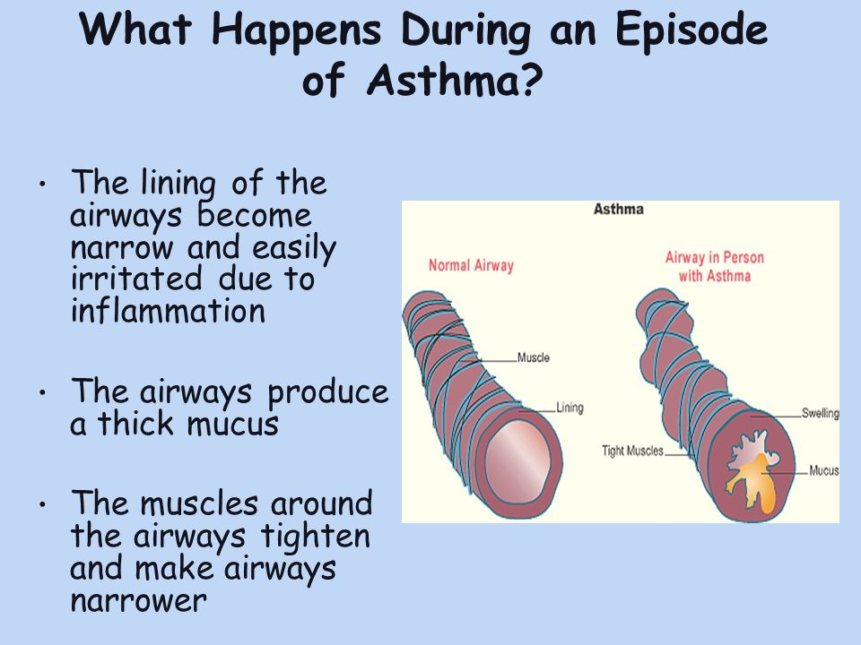 What Happens During an Episode of Asthma