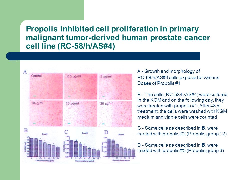 Propolis inhibited cell proliferation in primary malignant tumor-derived human prostate cancer cell line (RC-58/h/AS#4)