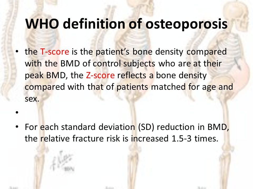 definition of osteoporosis International osteoporosis foundation and national osteoporosis foundation  2012 abstract summary guidelines concerning the definition of failure of.