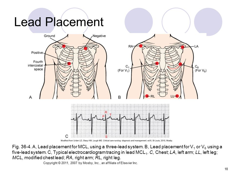 how to put ecg leads on chest