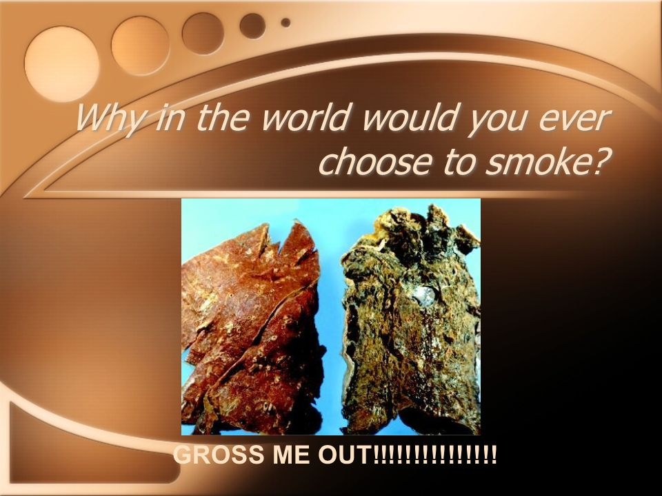 Why in the world would you ever choose to smoke