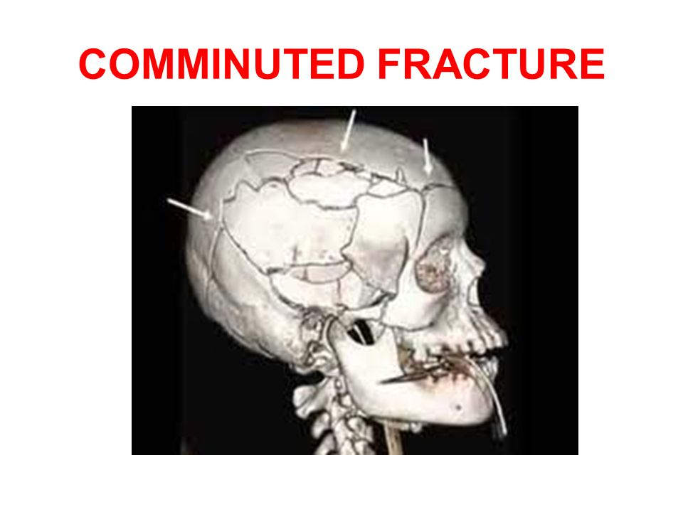HEAD INJURY By - Dr. RAJA RUPANI. - ppt download