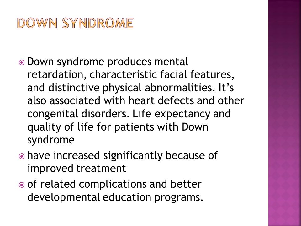 physical characteristics of down syndrome pdf