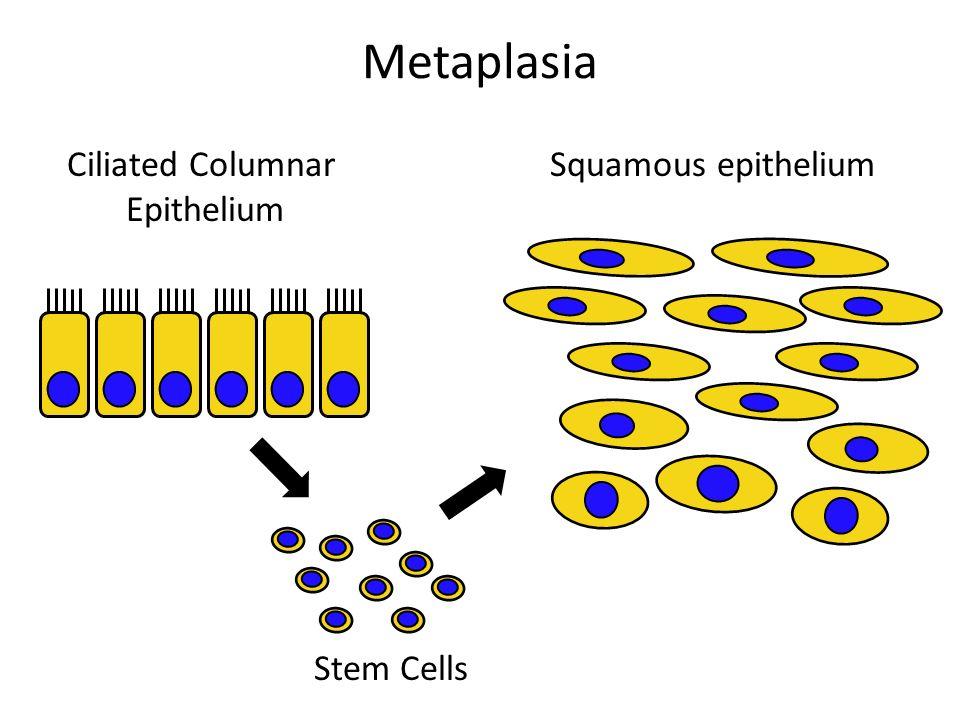 Metaplasia Ciliated Columnar Epithelium Squamous epithelium Stem Cells