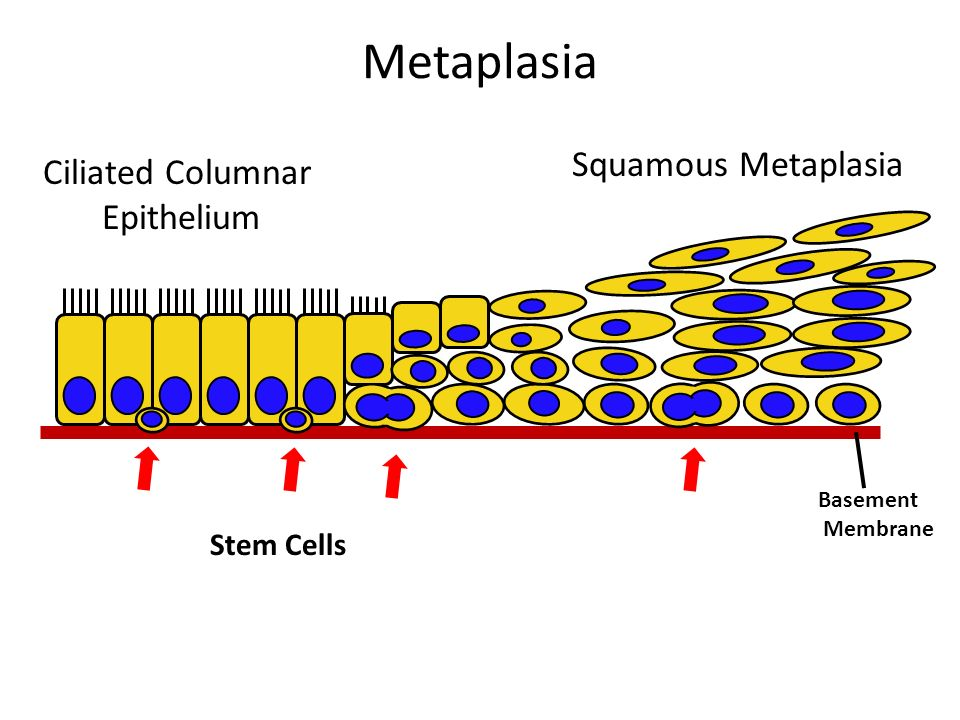 Metaplasia Squamous Metaplasia Ciliated Columnar Epithelium Stem Cells